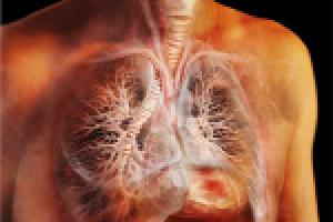 Излечим ли туберкулез легких?